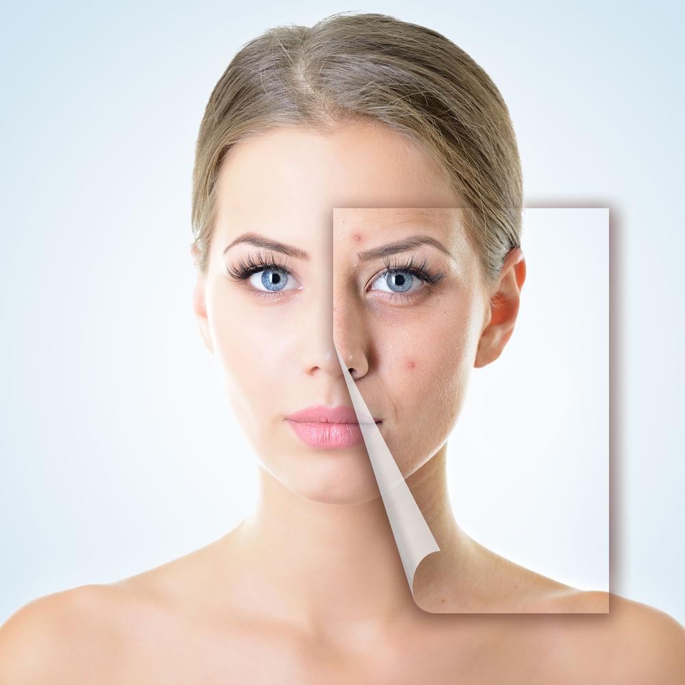 Cele mai bune ingrediente pentru a trata fiecare tip de acnee, potrivit dermatologilor