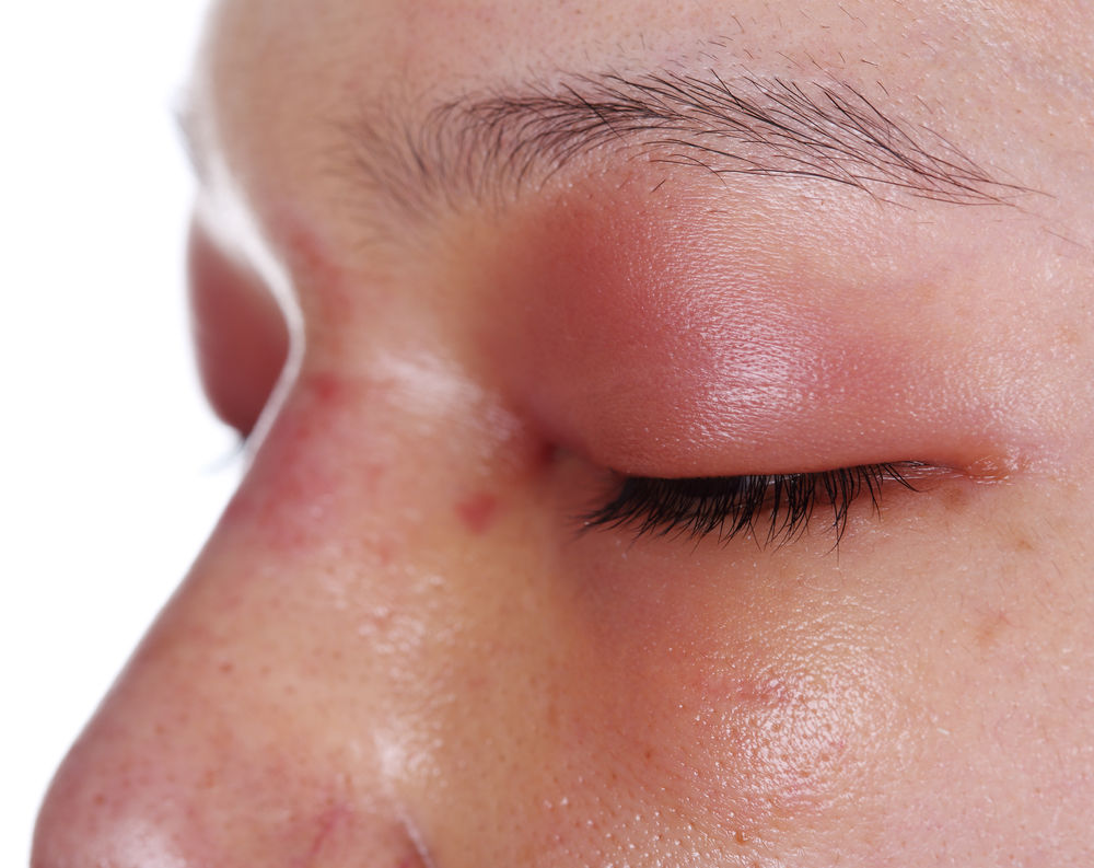 Angioedemul cauze simptome tratament