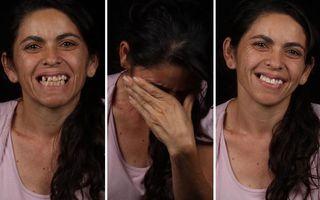 Cât contează un zâmbet: 30 de oameni care arată altfel după ce un dentist le-a reparat gratis dantura