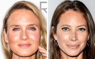 Efectul operațiilor estetice asupra vedetelor: 18 femei celebre cu și fără Botox