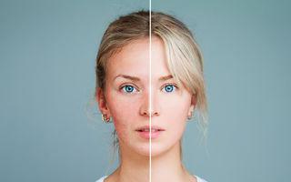 7 ingrediente cosmetice care agravează rozaceea