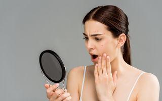Ce este acneea fungică și cum o poți trata