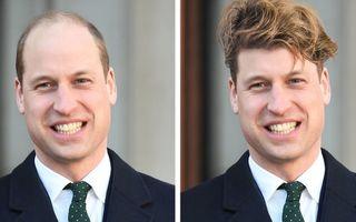 Cum ar arăta 15 bărbați celebri cu chelie dacă ar avea păr