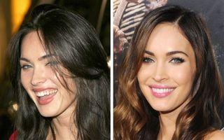 Puterea unui zâmbet: Cum s-au schimbat vedetele după ce și-au reparat dantura