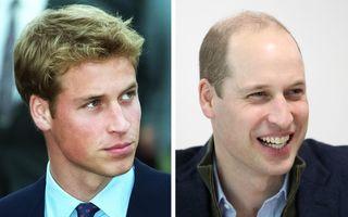 13 bărbați celebri care și-au pierdut părul, dar tot arată bine