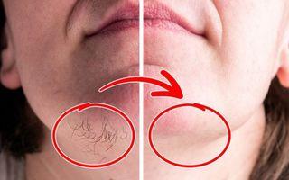 Cum să scapi de părul facial acasă, cu ingrediente naturale: 9 metode eficiente