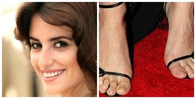 celebritate varicoză picioare)