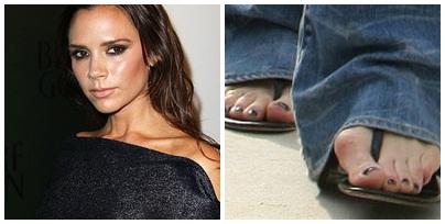 celebritate varicoză picioare