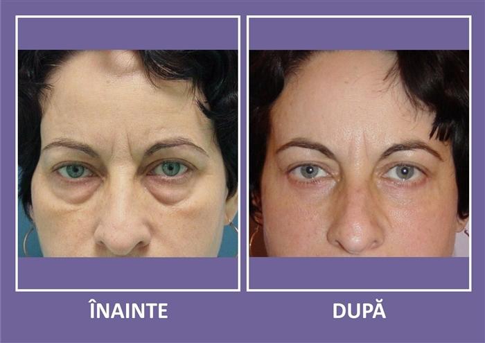 Riduri sub ochi acid hialuronic