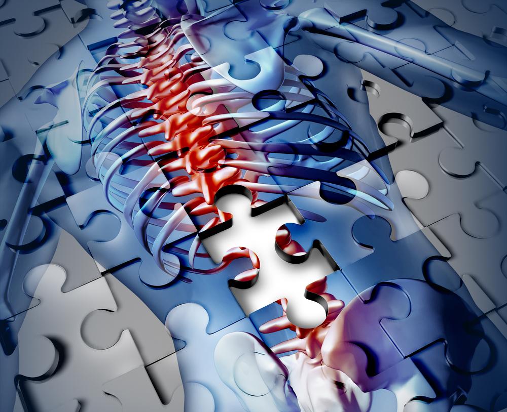 cum să tratezi medicina articulațiilor